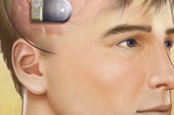 Implantable Neurostimulators Market