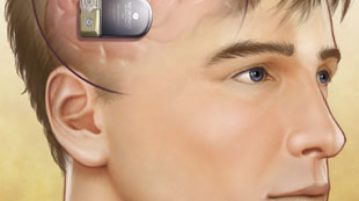 Implantable Neurostimulators Market